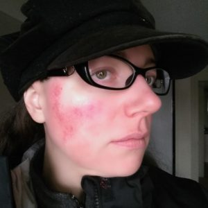 Rosy JulieBC - Example of what my rosacea flare-up looks like