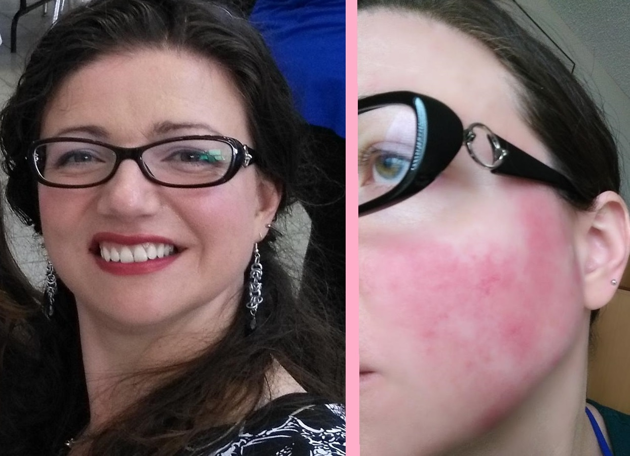 How I Cover Rosacea With Makeup - Rosy JulieBC - 2